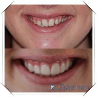 facette dentaire dent de travers