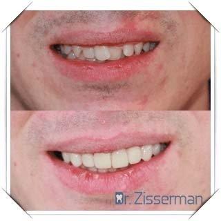 facette dentaire definition